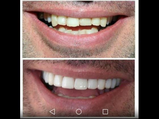 مرکز خیریه دندانپزشکی آرین وایمپلنت گلوبندک