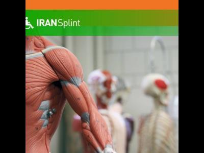ایران اسپلینت